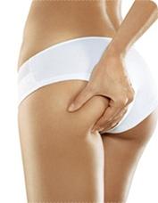 Was tun gegen Cellulite